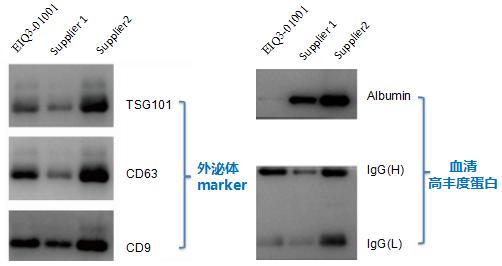 血清外泌体marker&高丰度蛋白比较.png
